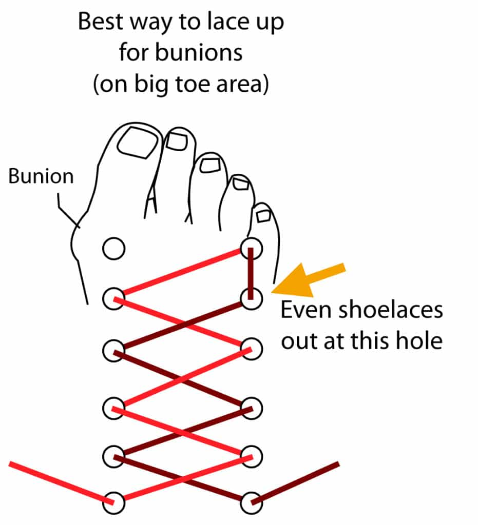 The Top 10 Best Shoes For Bunions Comfortable Amp Pain Free