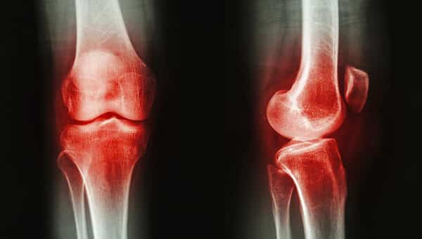 X-Ray of Bad Knees