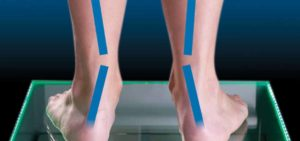 Overpronation Feet Illustration Image