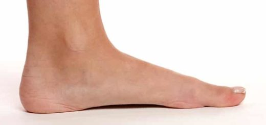 Shoes for Flat Feet Featured Image