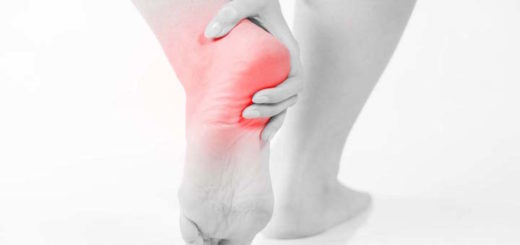 Plantar Fasciitis - Illustration of the Pain