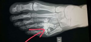 arthritc foot x-ray image