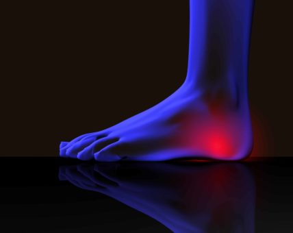 Best Running Shoes For Bone Spurs On Top Of Foot