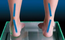 Under Pronation Supination