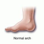 Normal-Arch-Foot