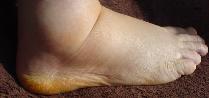 The Best Shoes for Swollen Feet (Edema