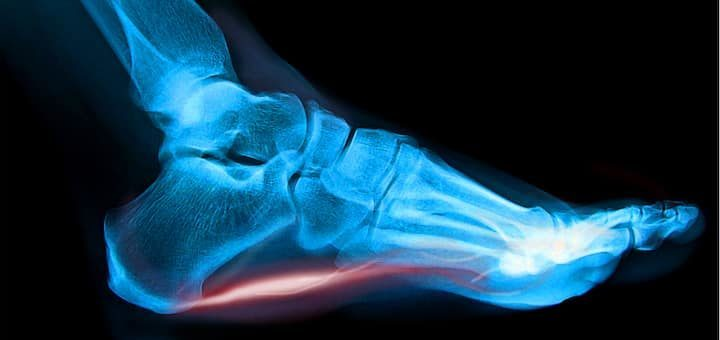 Plantar Fasciitis X Ray Illustration Featured Image