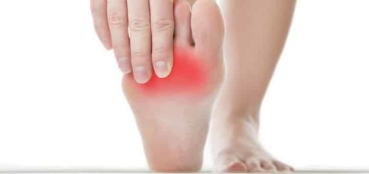 Foot Capsulitis