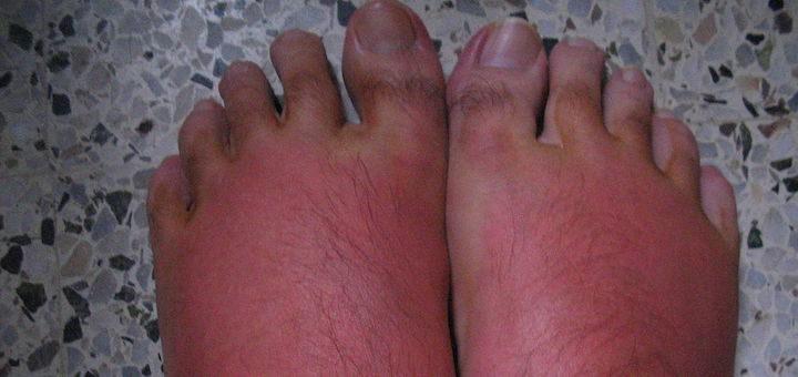 Burniing Feet